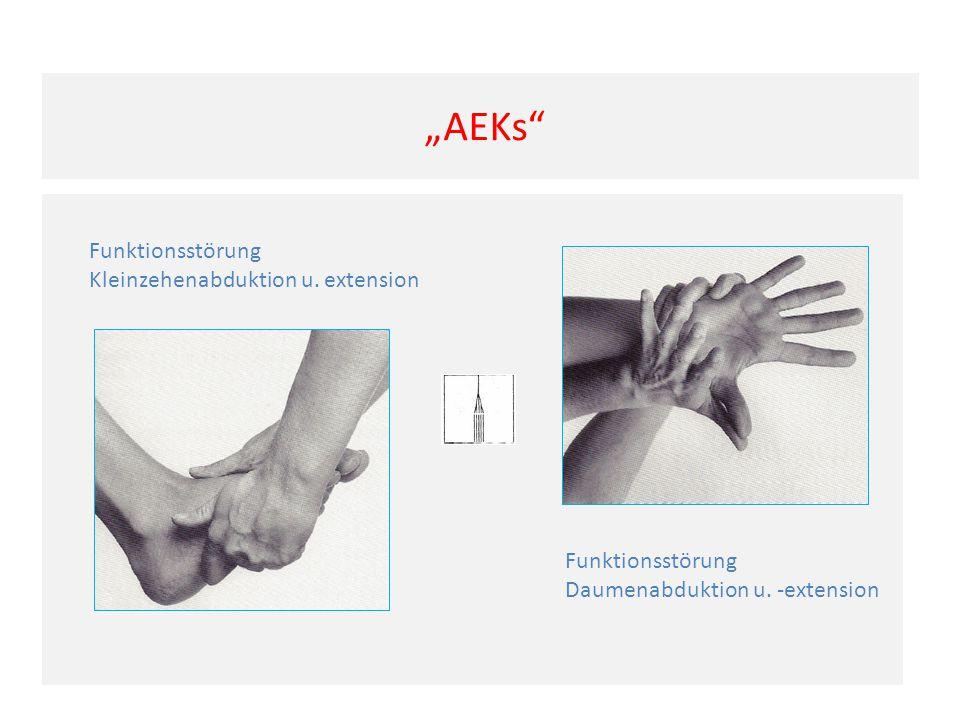 """""""AEKs Funktionsstörung Kleinzehenabduktion u. extension"""