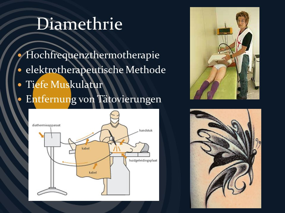Diamethrie Hochfrequenzthermotherapie elektrotherapeutische Methode