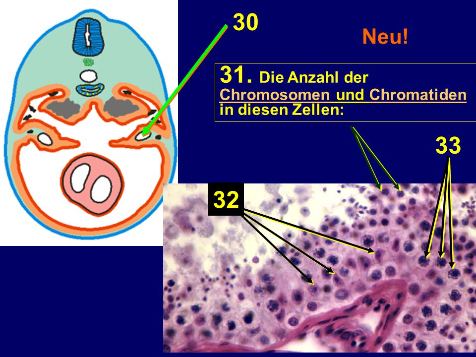 30 31. Die Anzahl der 33 32 Neu! Chromosomen und Chromatiden