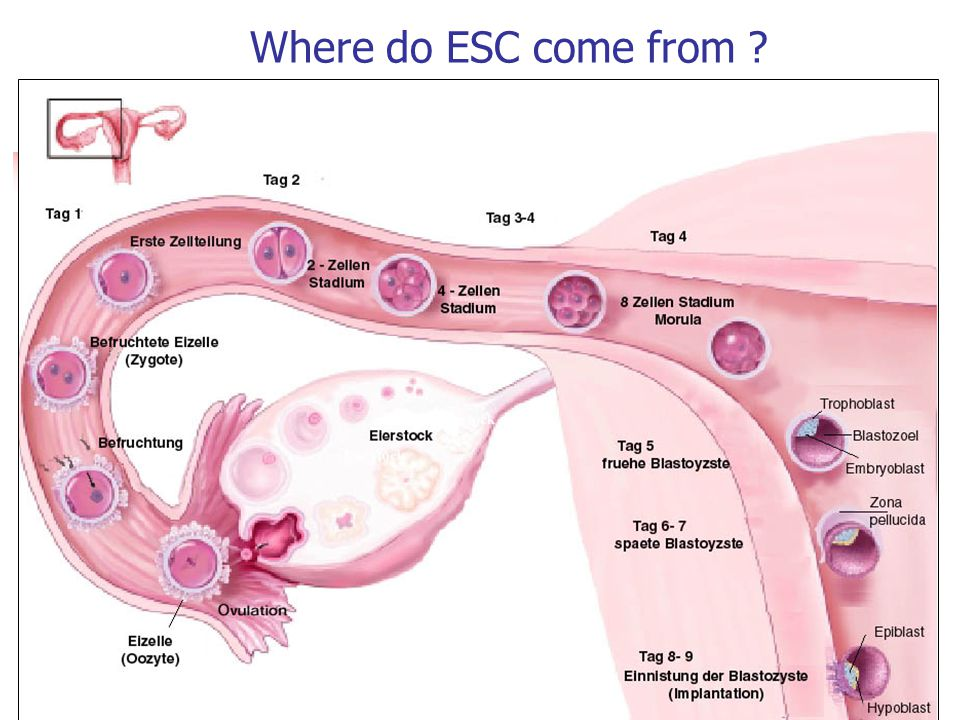 Where do ESC come from 21