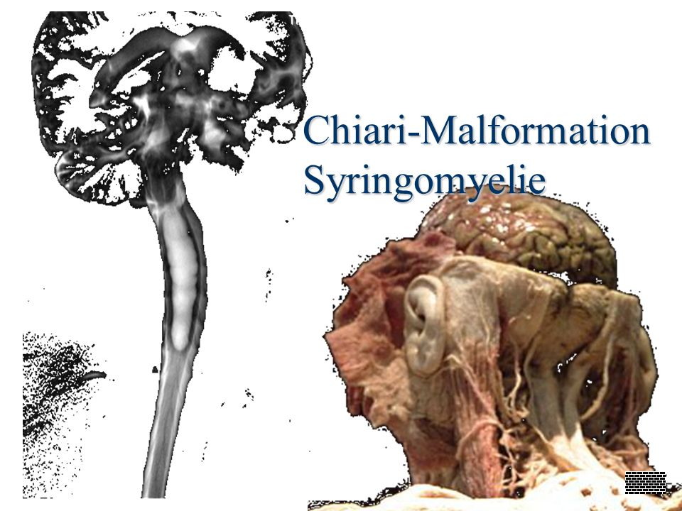 Chiari-Malformation Syringomyelie