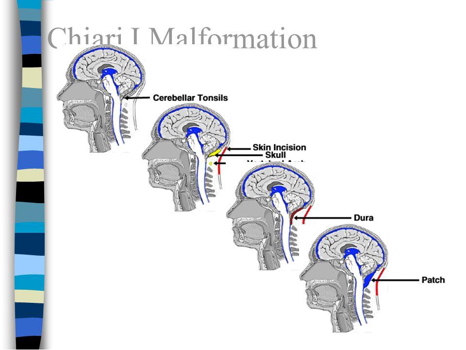 Chiari I Malformation 12