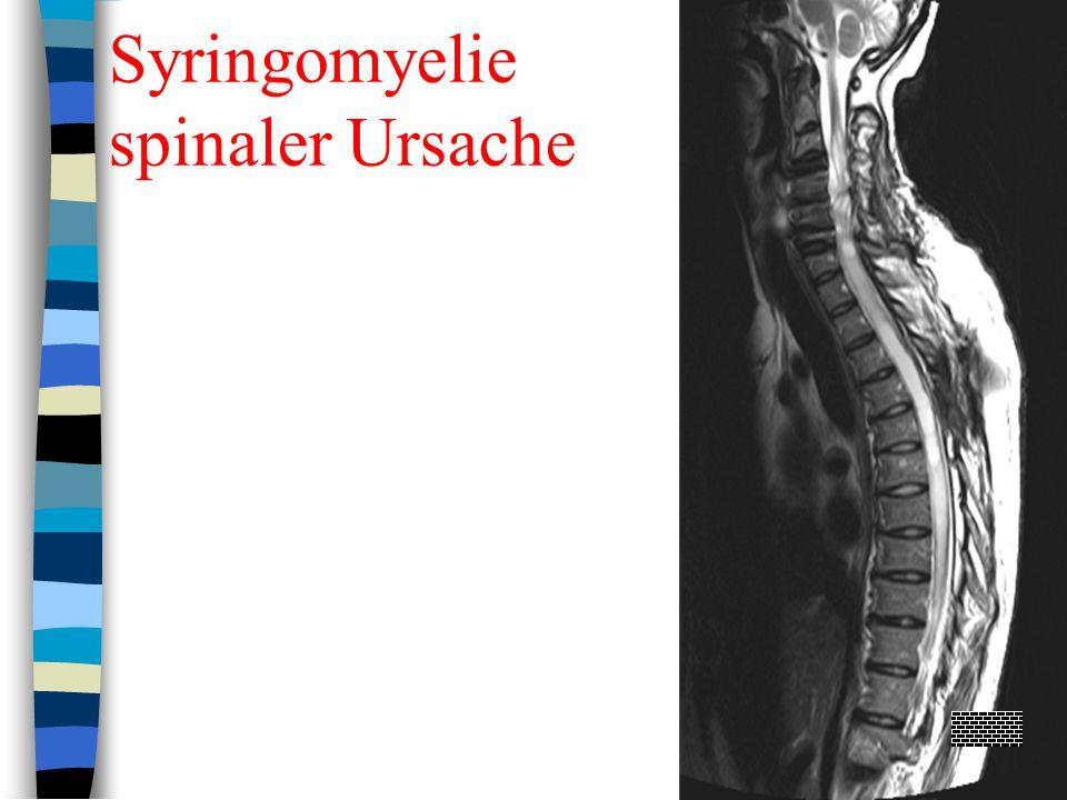 Syringomyelie spinaler Ursache