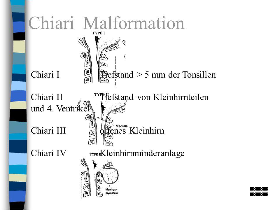 Chiari Malformation Chiari I Tiefstand > 5 mm der Tonsillen