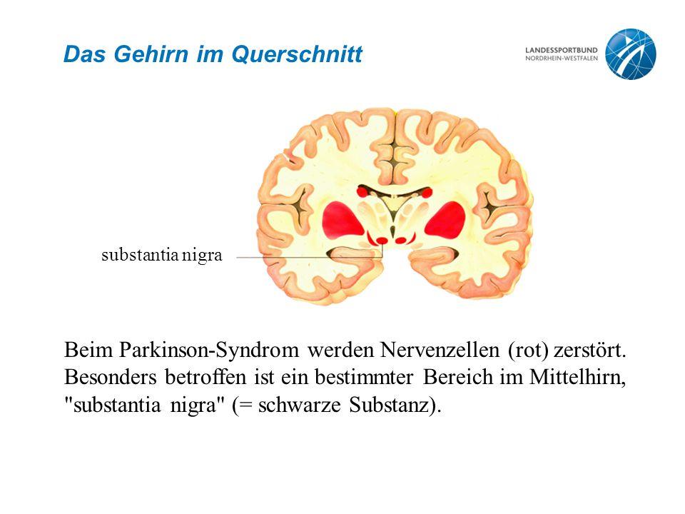 Das Gehirn im Querschnitt