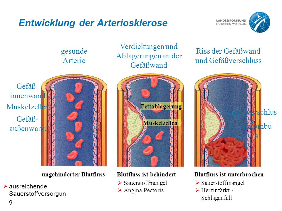 Entwicklung der Arteriosklerose