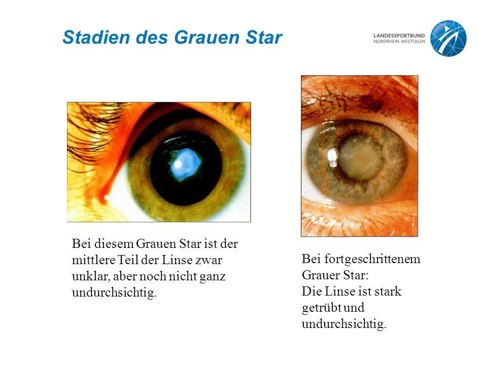 Stadien des Grauen Star