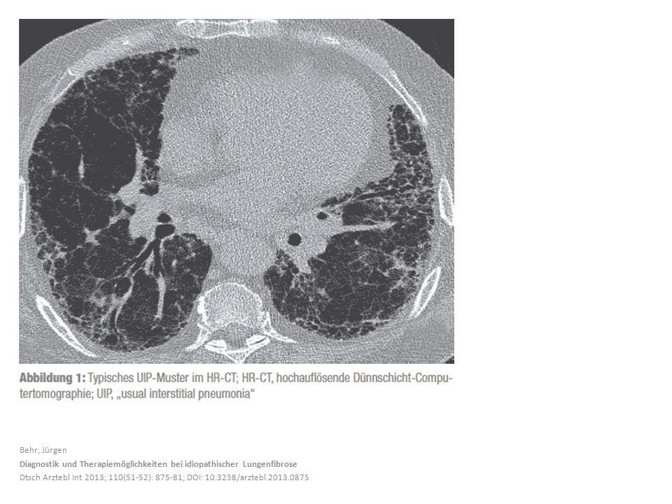Behr, Jürgen Diagnostik und Therapiemöglichkeiten bei idiopathischer Lungenfibrose.