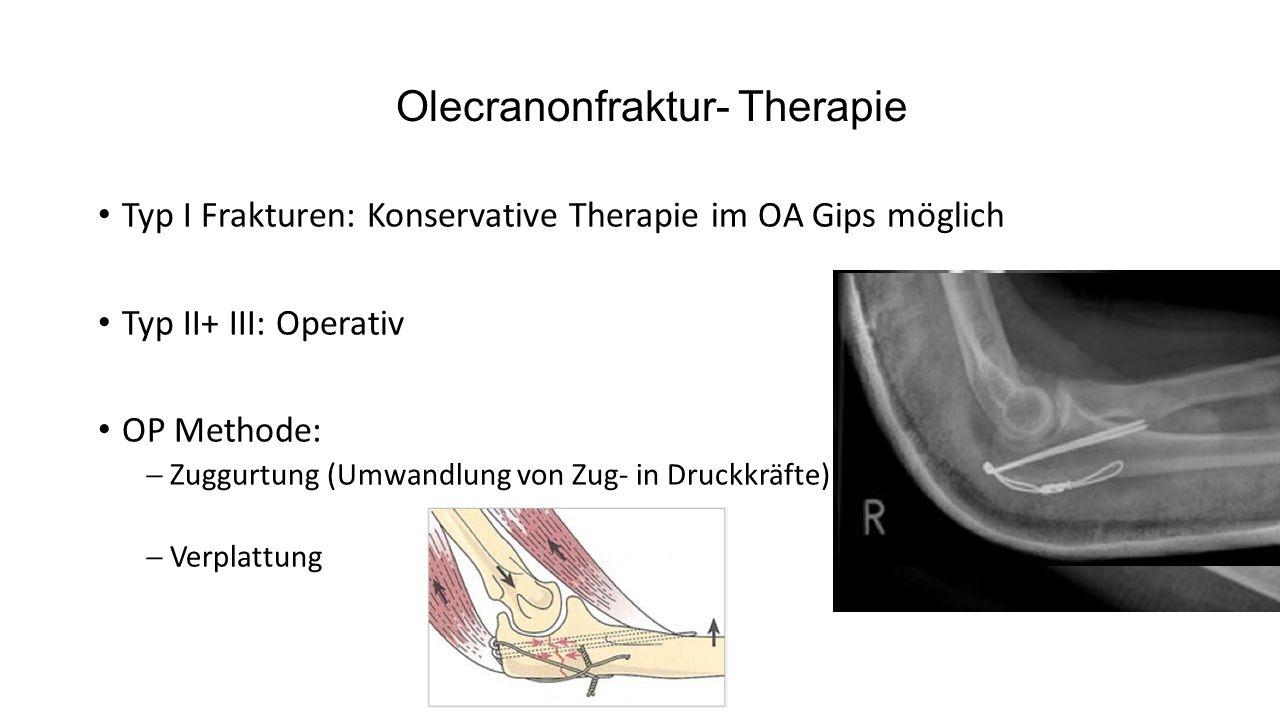 Olecranonfraktur- Therapie