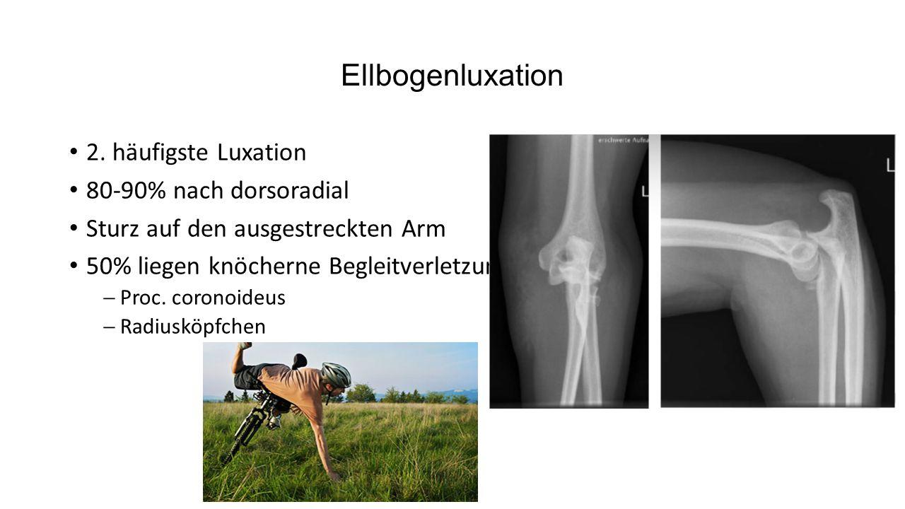 Ellbogenluxation 2. häufigste Luxation 80-90% nach dorsoradial