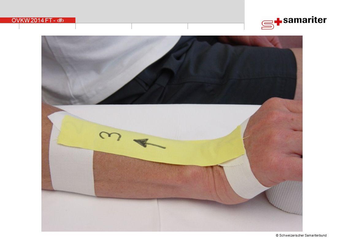 Zum Tapen soll das Handgelenk aufwärts angewinkelt werden