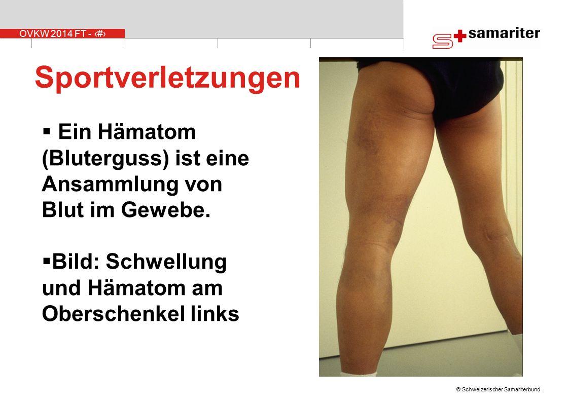 Sportverletzungen Ein Hämatom (Bluterguss) ist eine Ansammlung von Blut im Gewebe. Bild: Schwellung und Hämatom am Oberschenkel links.