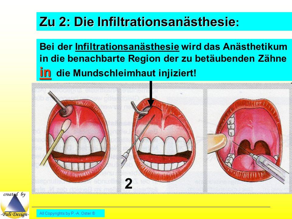 2 Zu 2: Die Infiltrationsanästhesie: