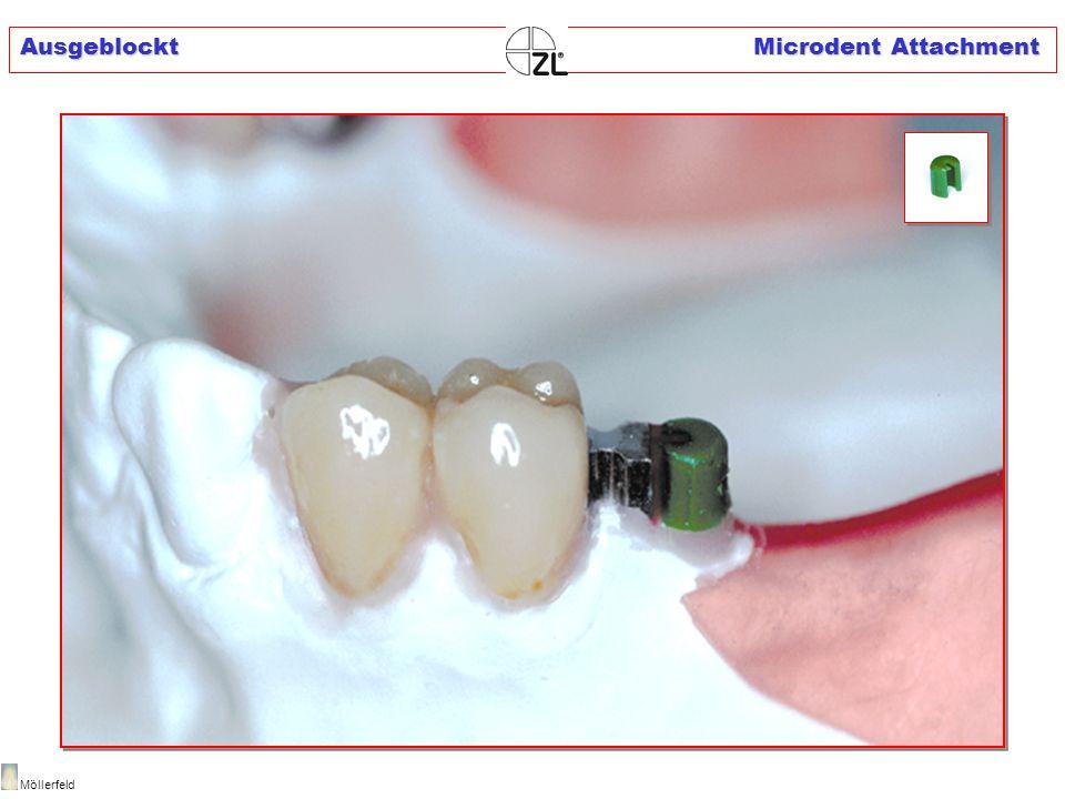 Ausgeblockt Microdent Attachment