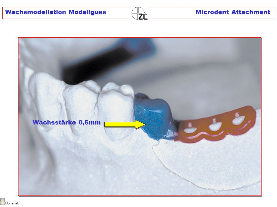 Wachsmodellation Modellguss Microdent Attachment