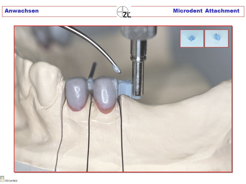 Anwachsen Microdent Attachment