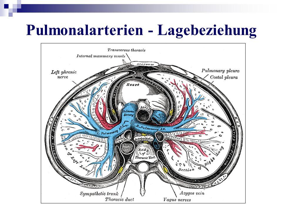 Pulmonalarterien - Lagebeziehung
