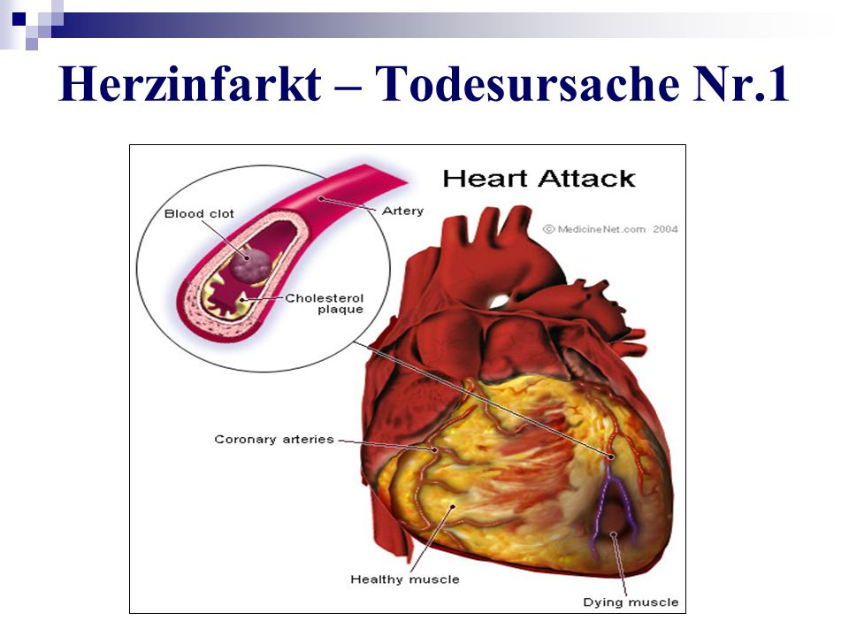Herzinfarkt – Todesursache Nr.1
