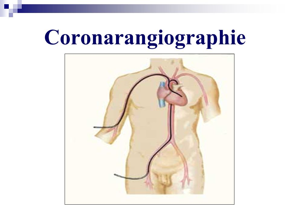 Coronarangiographie