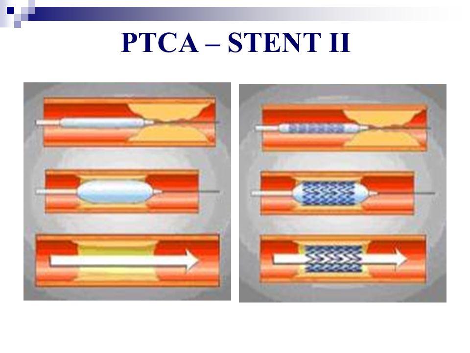 PTCA – STENT II