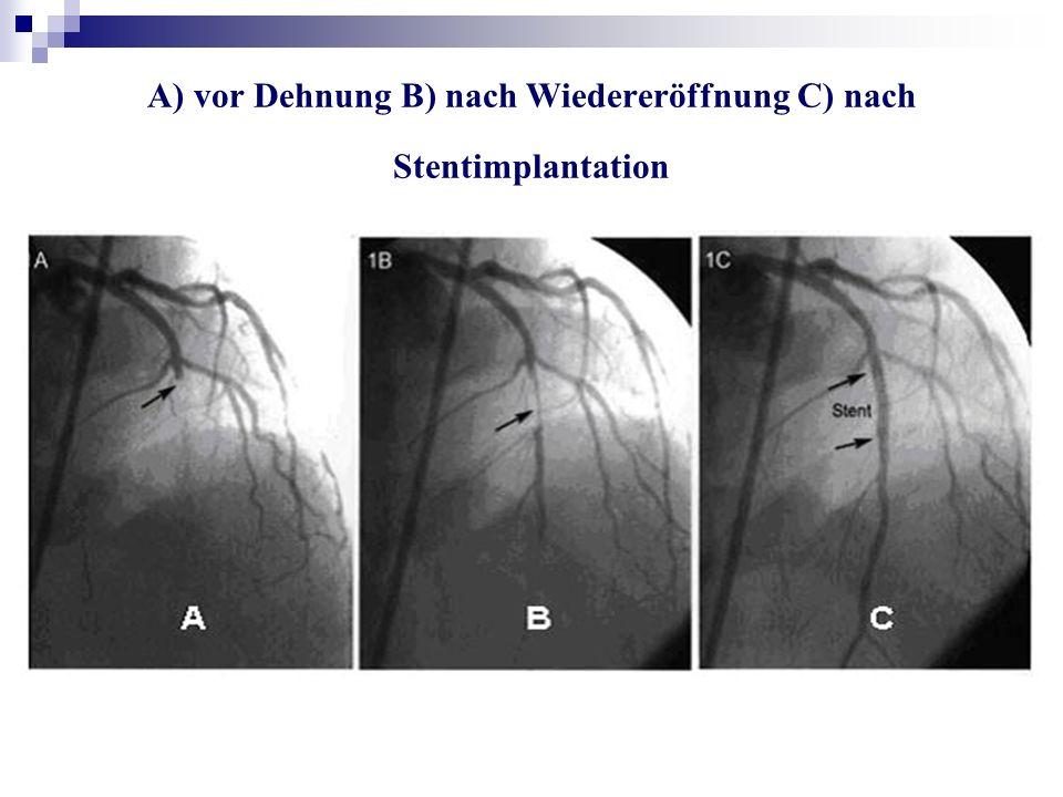A) vor Dehnung B) nach Wiedereröffnung C) nach Stentimplantation