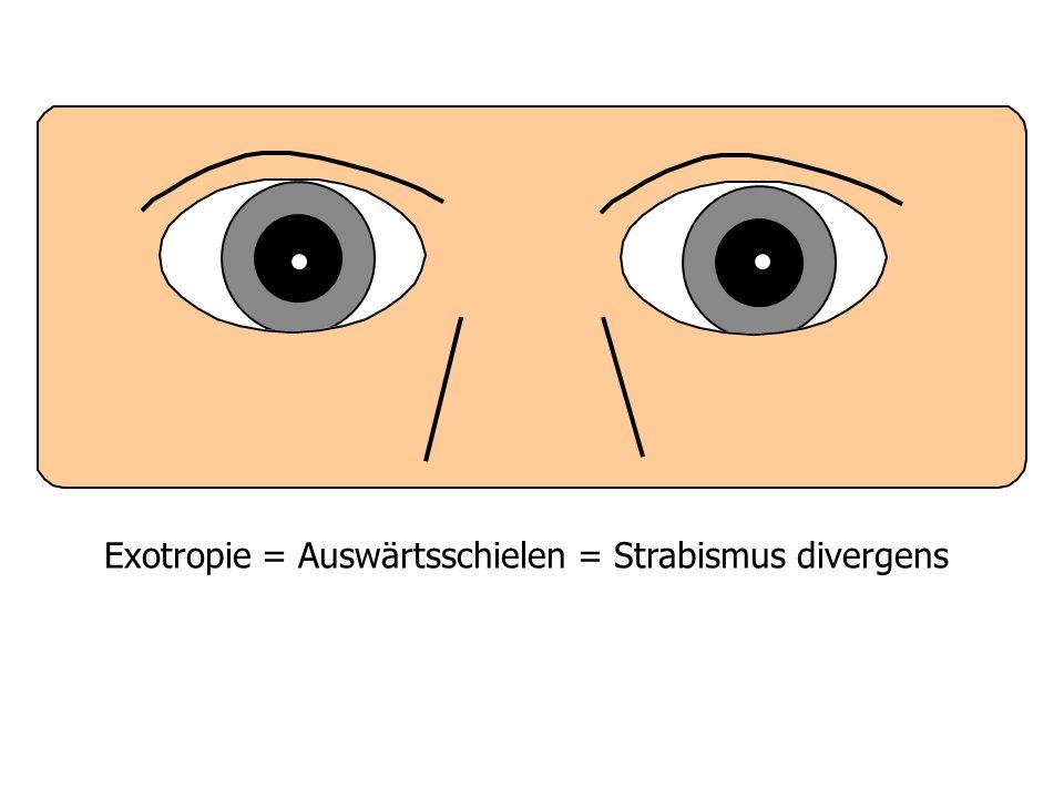 Exotropie = Auswärtsschielen = Strabismus divergens