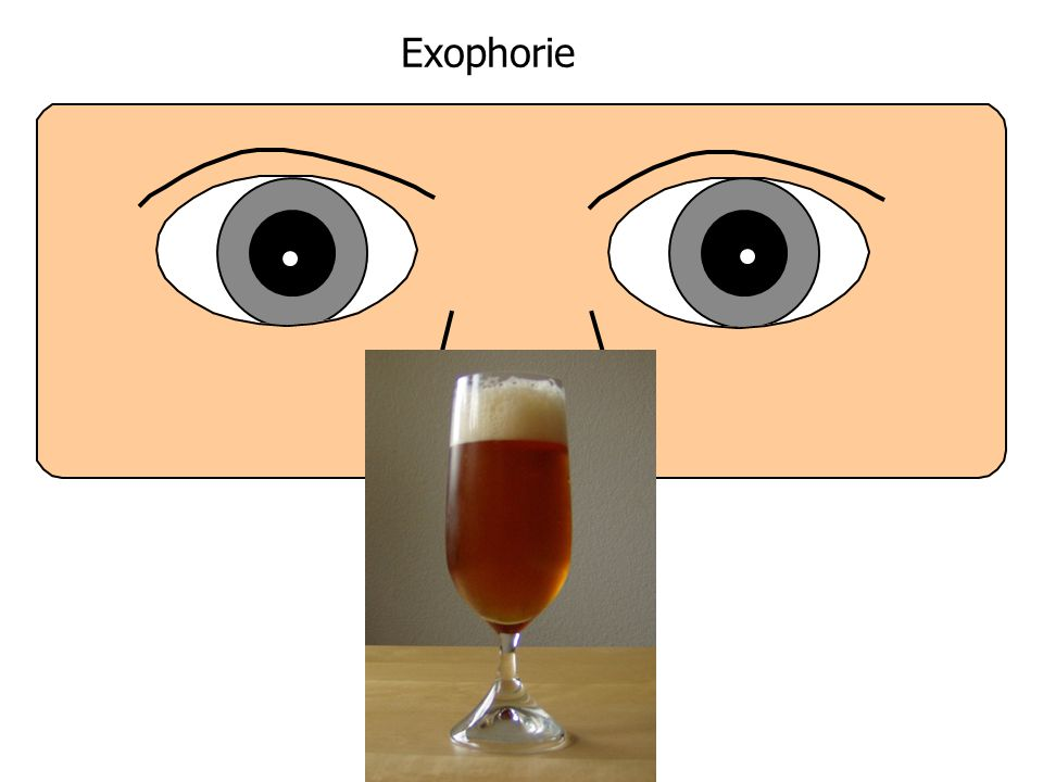 Exophorie