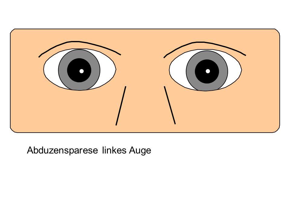 Abduzensparese linkes Auge