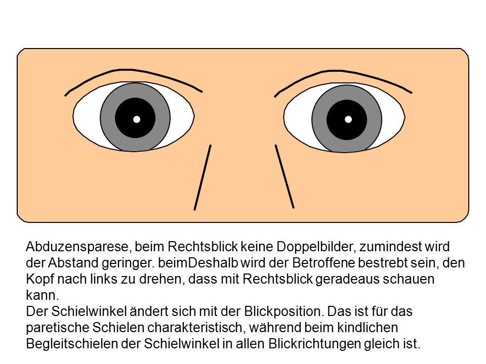 Abduzensparese, beim Rechtsblick keine Doppelbilder, zumindest wird der Abstand geringer. beimDeshalb wird der Betroffene bestrebt sein, den Kopf nach links zu drehen, dass mit Rechtsblick geradeaus schauen kann.
