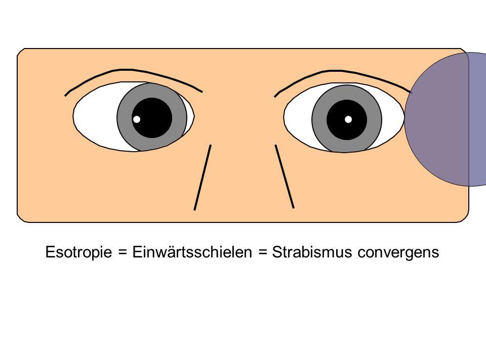 Esotropie = Einwärtsschielen = Strabismus convergens