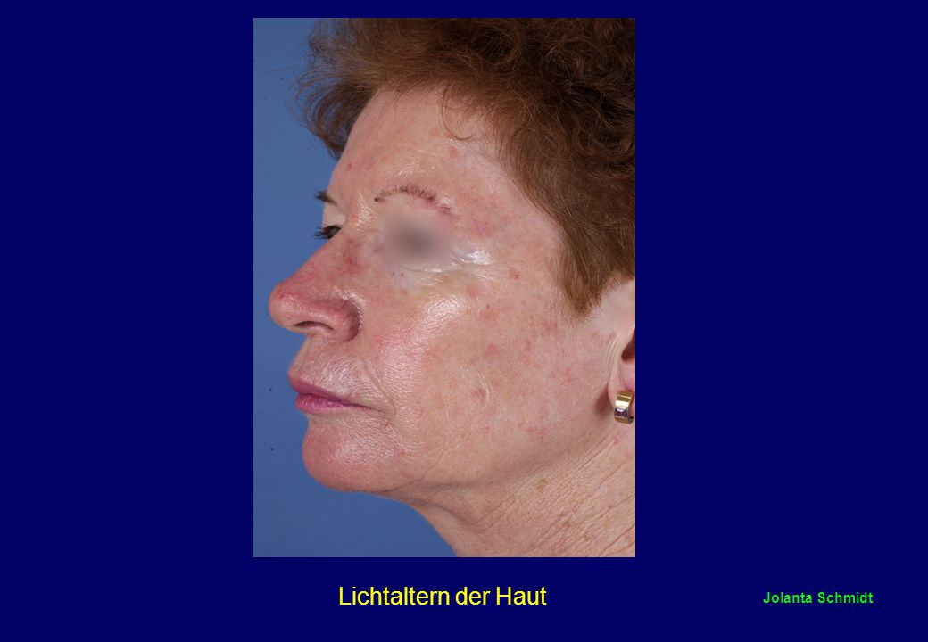 Lichtaltern der Haut