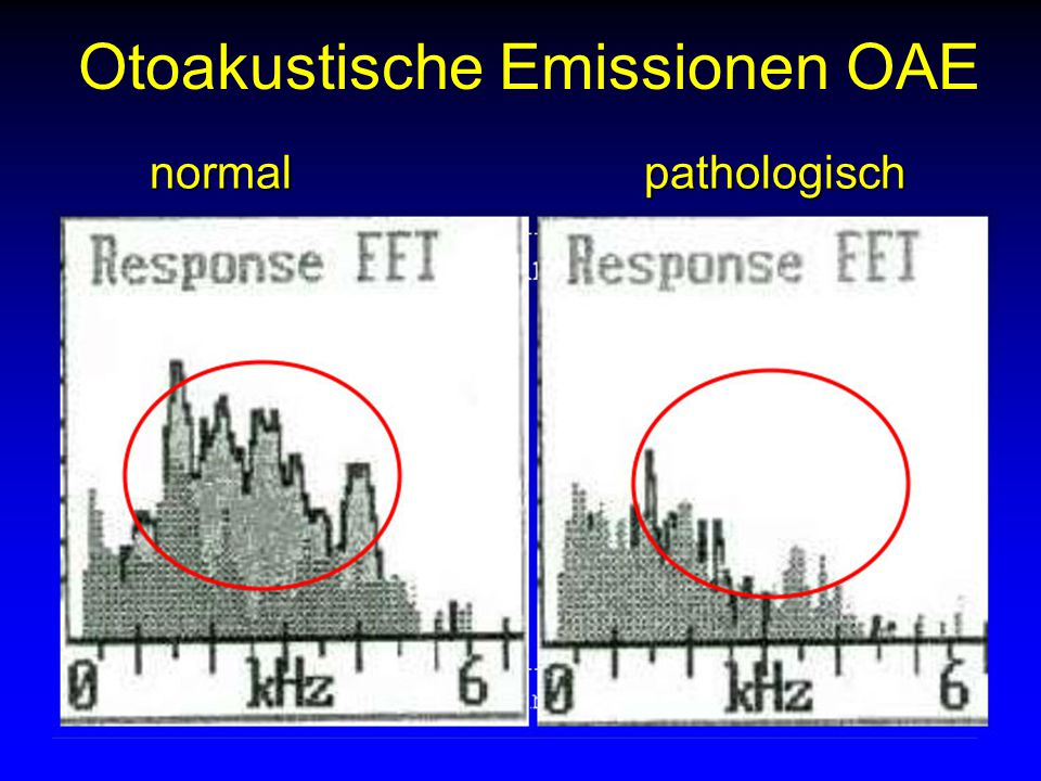Otoakustische Emissionen OAE