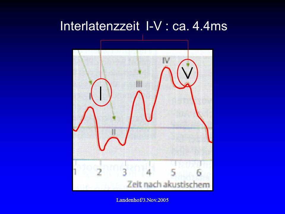 Interlatenzzeit I-V : ca. 4.4ms