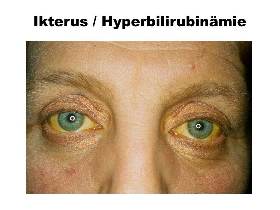 Ikterus / Hyperbilirubinämie