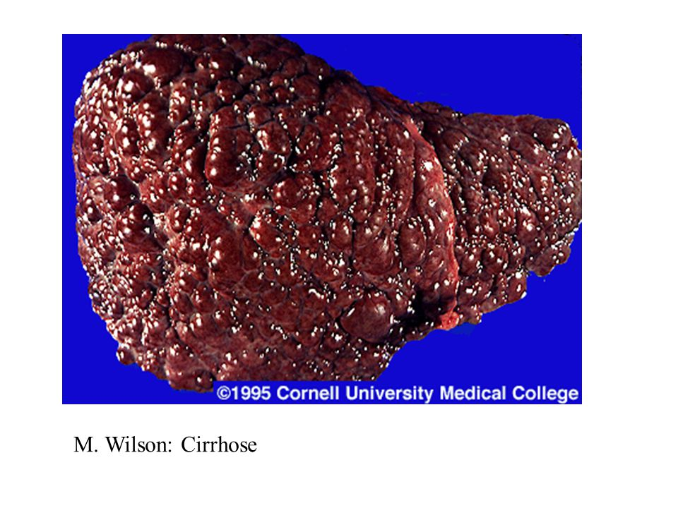 M. Wilson: Cirrhose