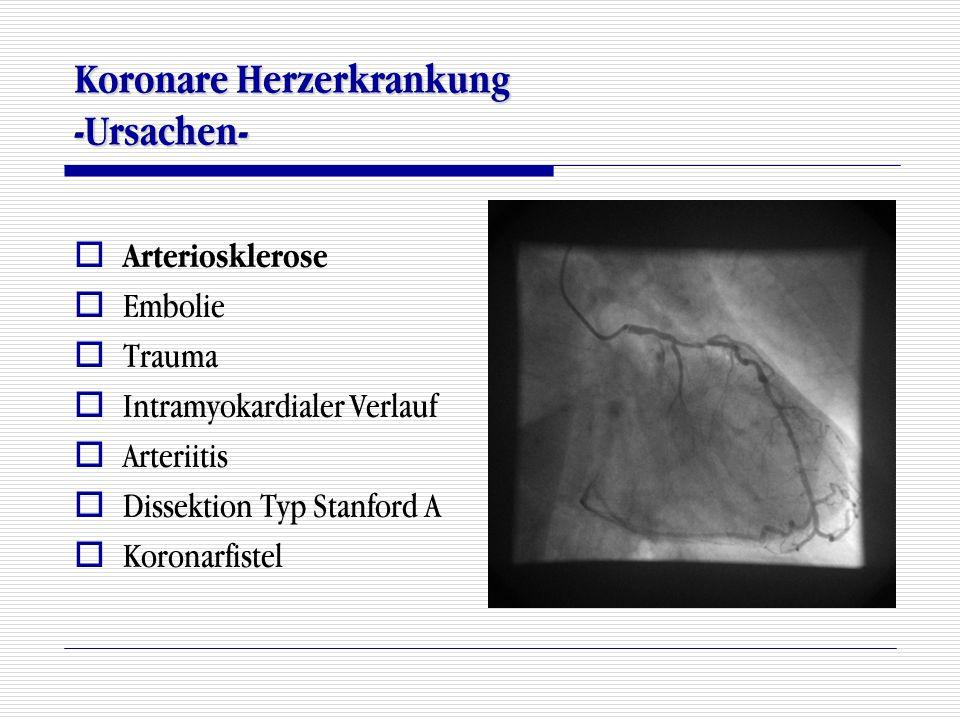 Koronare Herzerkrankung -Ursachen-
