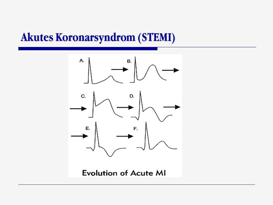 Akutes Koronarsyndrom (STEMI)