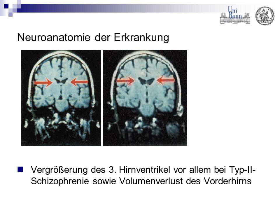 Neuroanatomie der Erkrankung