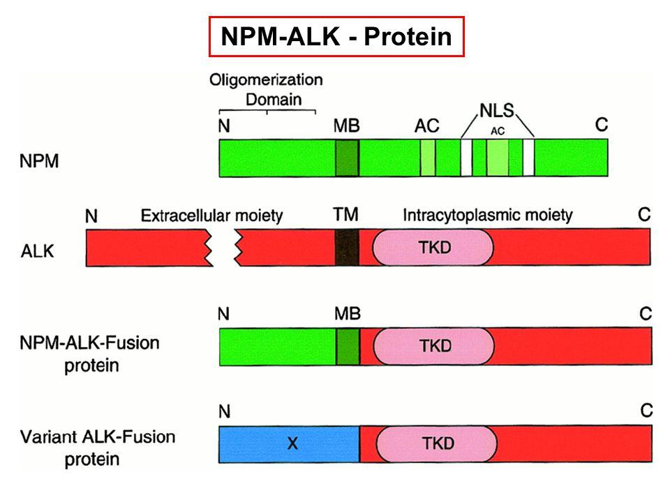 NPM-ALK - Protein