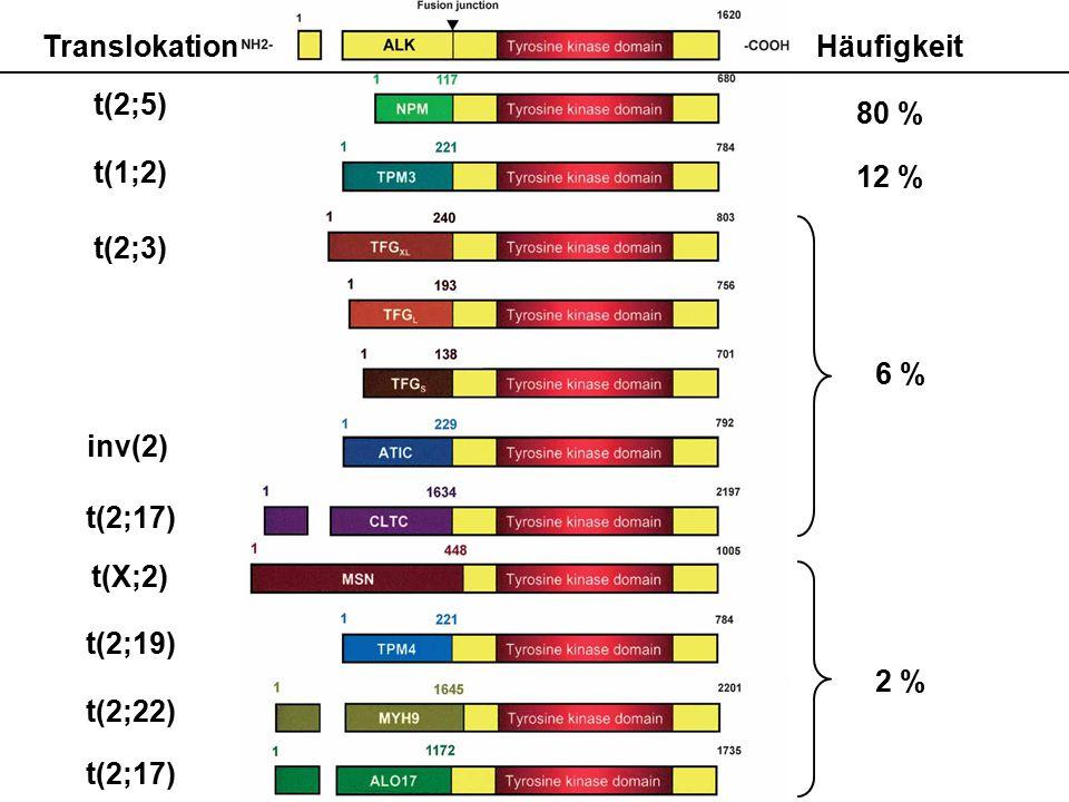 Translokation Häufigkeit. 80 % 12 % t(2;5) t(1;2) t(2;3) 6 % inv(2) t(2;17) t(X;2) t(2;19)