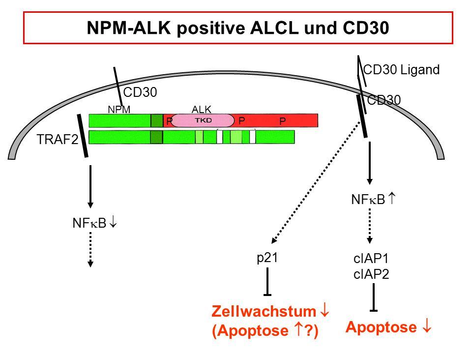 NPM-ALK positive ALCL und CD30