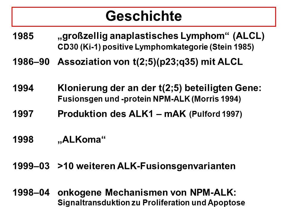 "Geschichte 1985. ""großzellig anaplastisches Lymphom (ALCL) CD30 (Ki-1) positive Lymphomkategorie (Stein 1985)"