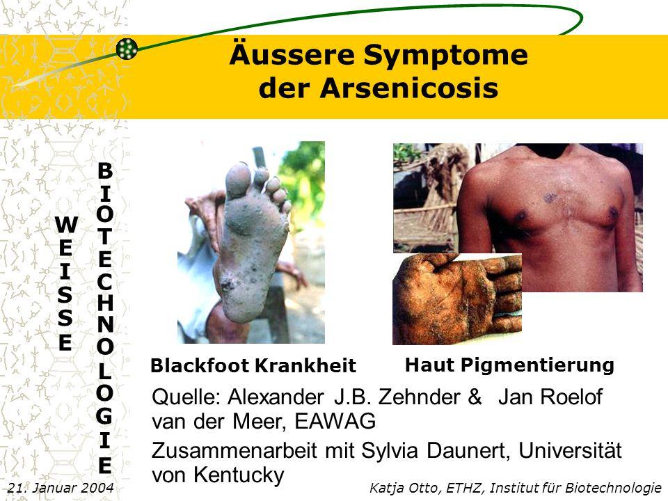 Äussere Symptome der Arsenicosis