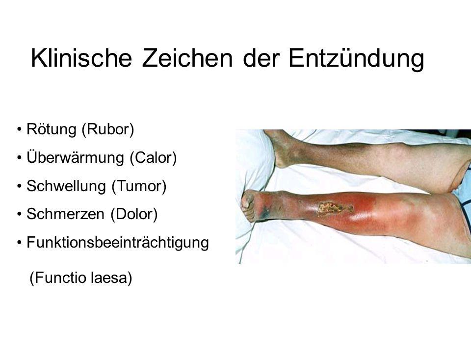 Klinische Zeichen der Entzündung