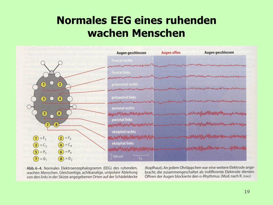 Normales EEG eines ruhenden wachen Menschen