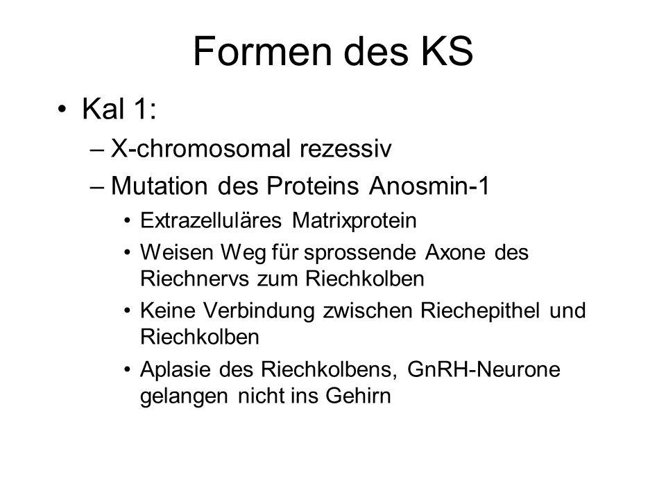 Formen des KS Kal 1: X-chromosomal rezessiv