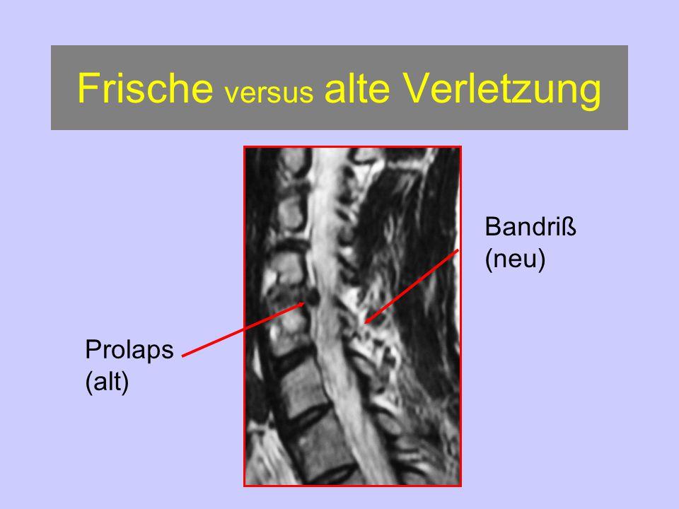 Frische versus alte Verletzung
