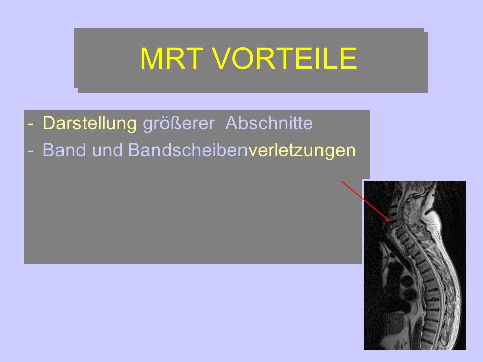 MRT VORTEILE Darstellung größerer Abschnitte