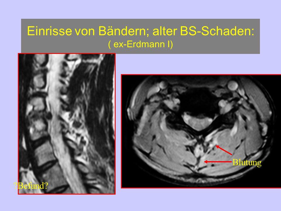Einrisse von Bändern; alter BS-Schaden: ( ex-Erdmann I)