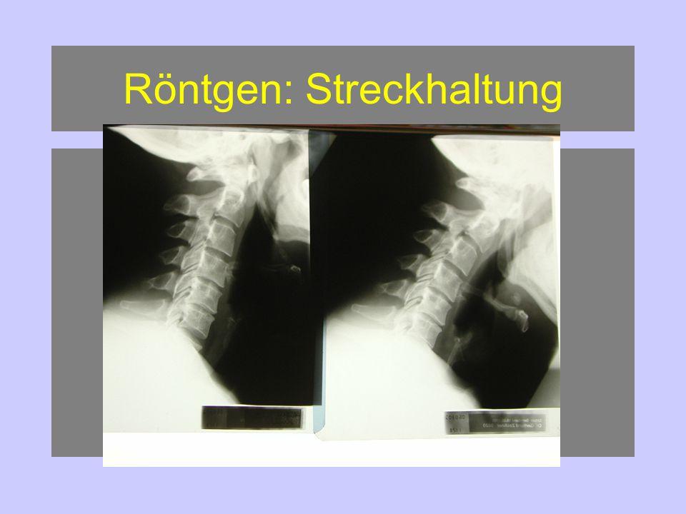 Röntgen: Streckhaltung